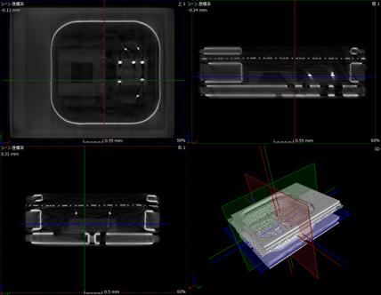 マイクロフォンの直行CT像