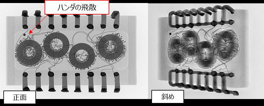 IC型コイルの透過観察