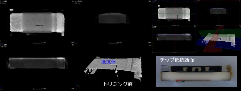 チップ抵抗のCT像